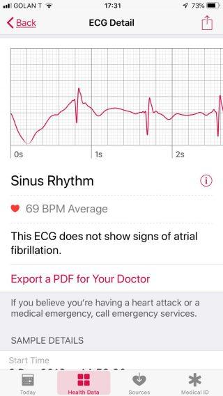 ECG Sinus Rhythm Detail