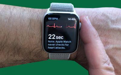 ECG on the Apple Watch